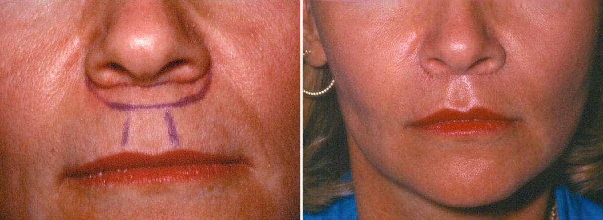 Sub-Nasal Lip lift Before and After Photos in Lexington, KY, Patient 14261