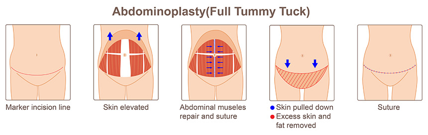 Those with more pronounced bulk and larger amounts of fat, stretched and separated muscles, and excess loose skin are candidates for a full abdominoplasty.