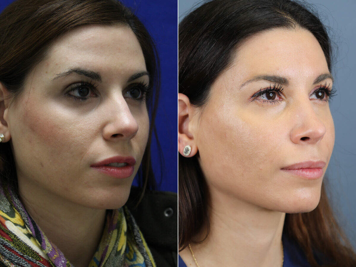 Nose Reshaping (Rhinoplasty) Before and After Photos in Lexington, KY, Patient 17666