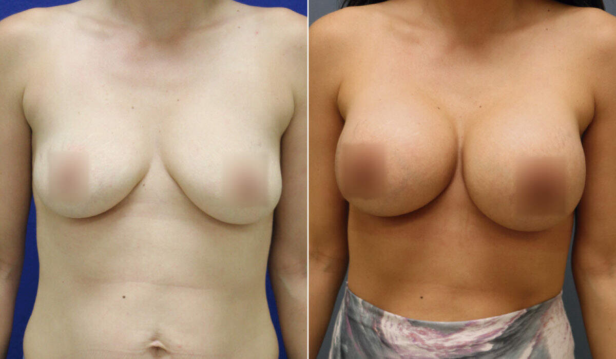 Breast Augmentation Before and After Photos in Lexington, KY, Patient 10138
