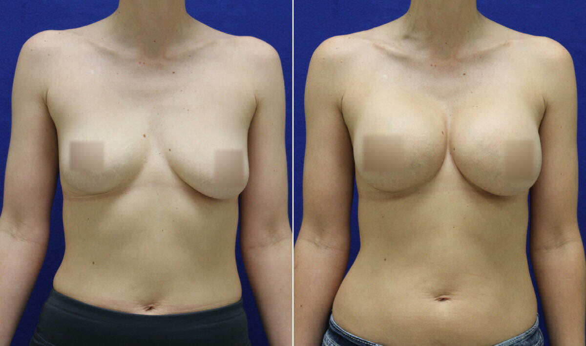 Breast Augmentation Before and After Photos in Lexington, KY, Patient 10435