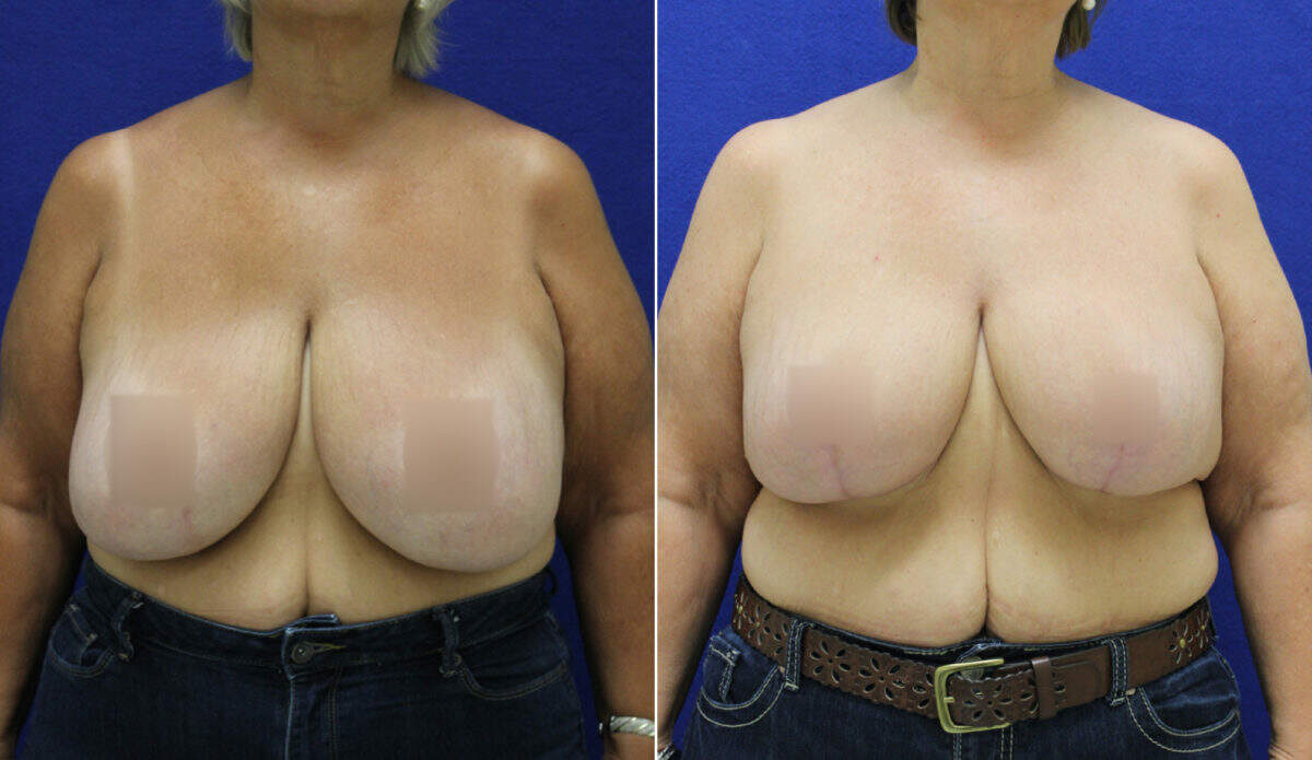 Breast Reduction Before and After Photos in Lexington, KY, Patient 10764