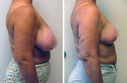 Breast Reduction Before and After Photos in Lexington, KY, Patient 7724