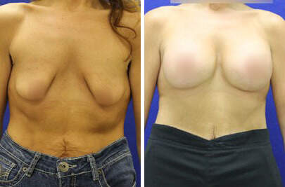 Breast Lift with Implants Before and After Photos in Lexington, KY, Patient 7826