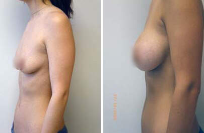 Breast Augmentation Before and After Photos in Lexington, KY, Patient 8067