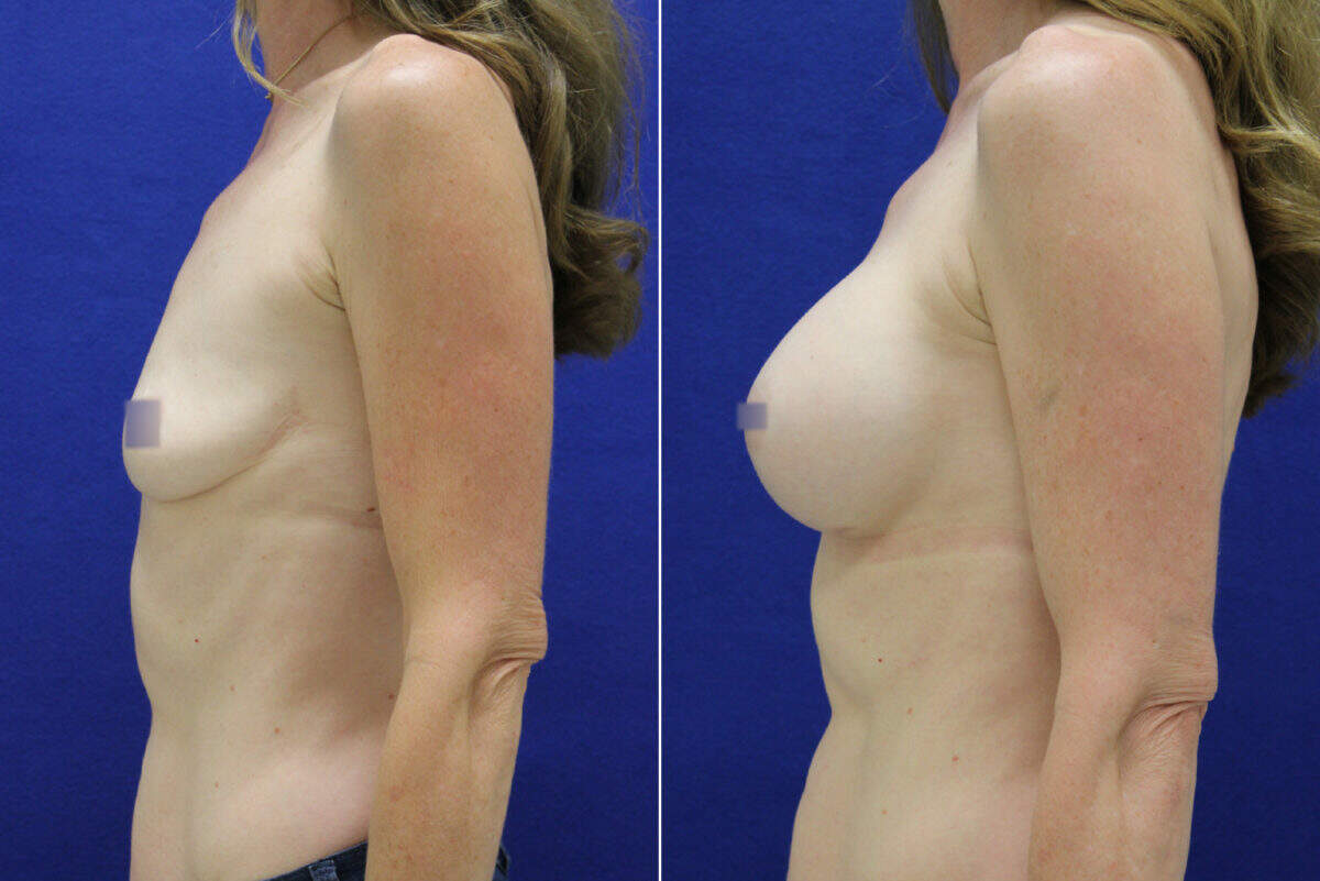 Breast Augmentation Before and After Photos in Lexington, KY, Patient 8117
