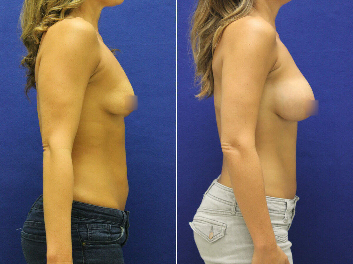 Breast Augmentation Before and After Photos in Lexington, KY, Patient 8605