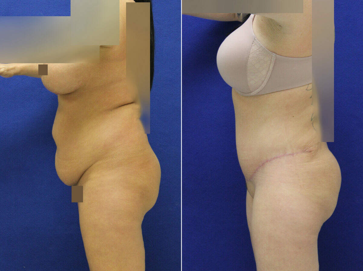Tummy Tuck Before and After Photos in Lexington, KY, Patient 8954