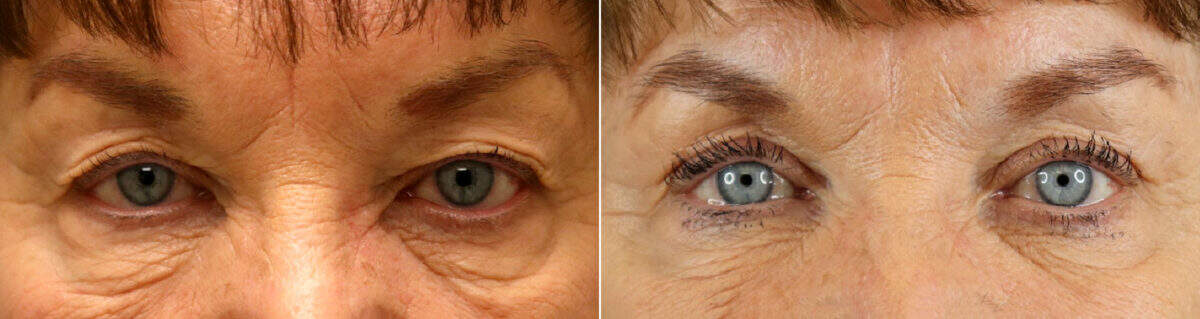 Upper Blepharoplasty Before and After Photos in Lexington, KY, Patient 17686