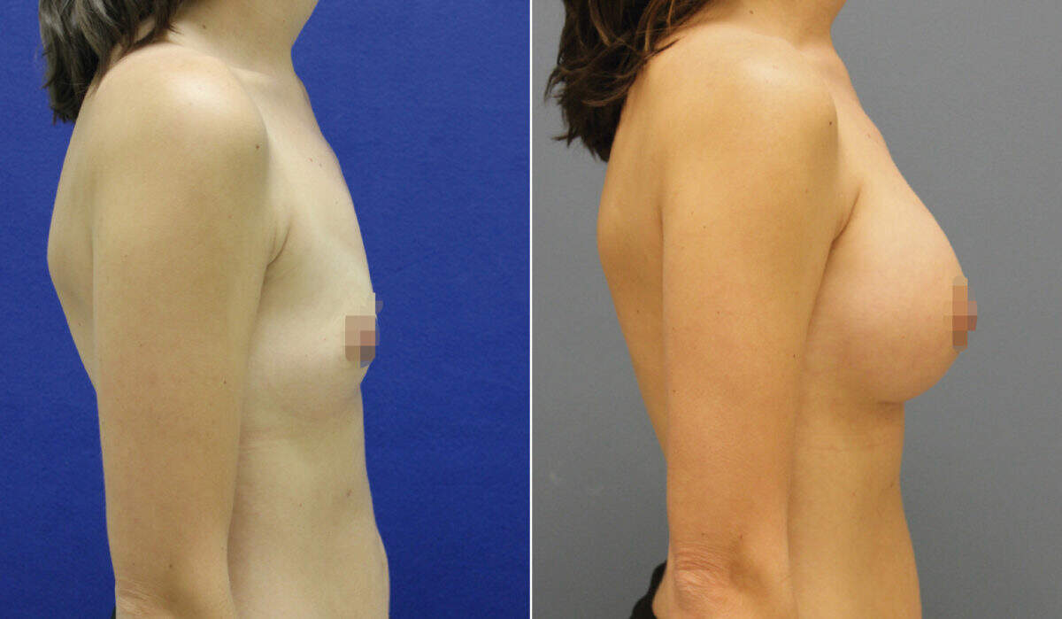 Breast Augmentation Before and After Photos in Lexington, KY, Patient 10135