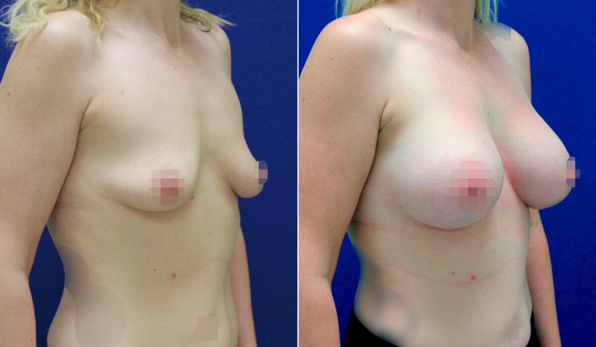 Breast Augmentation Before and After Photos in Lexington, KY, Patient 10136