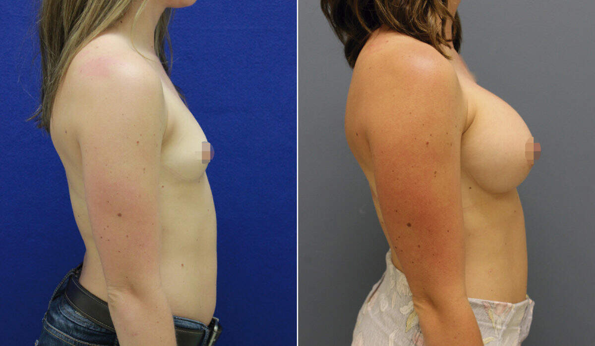 Breast Augmentation Before and After Photos in Lexington, KY, Patient 10139