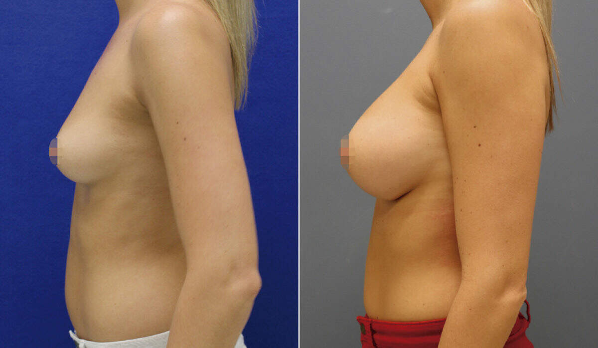Breast Augmentation Before and After Photos in Lexington, KY, Patient 10141