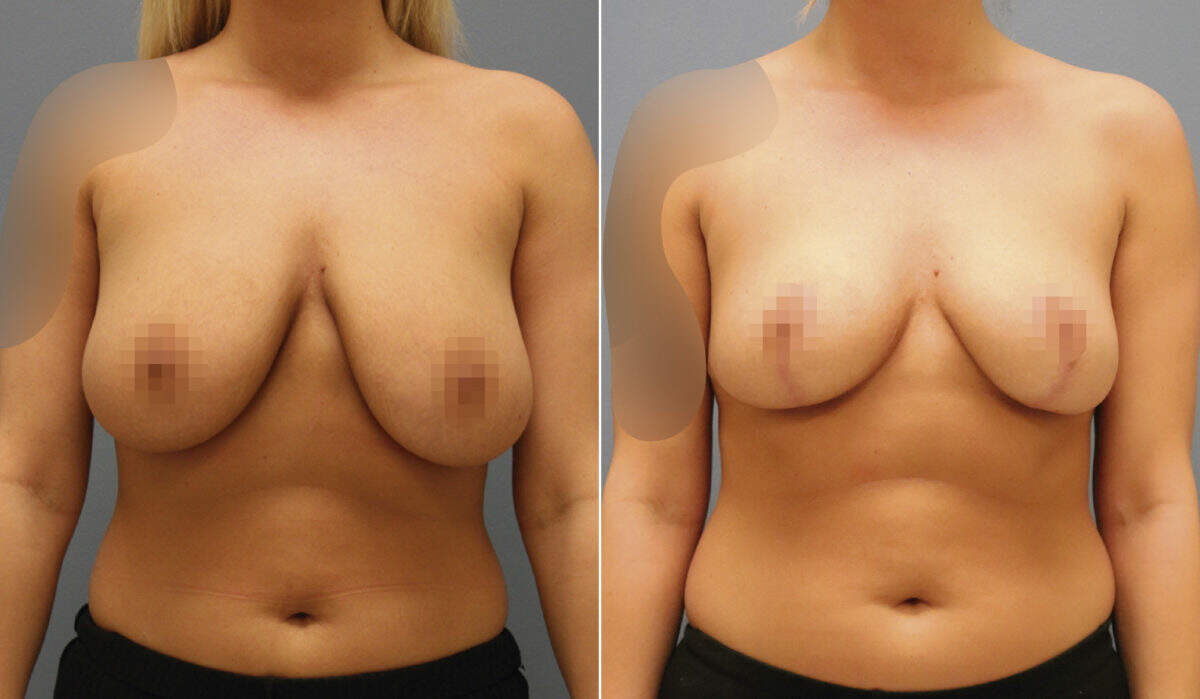 Breast Reduction Before and After Photos in Lexington, KY, Patient 10214