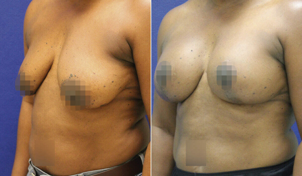 Breast Lift with Implants Before and After Photos in Lexington, KY, Patient 10252