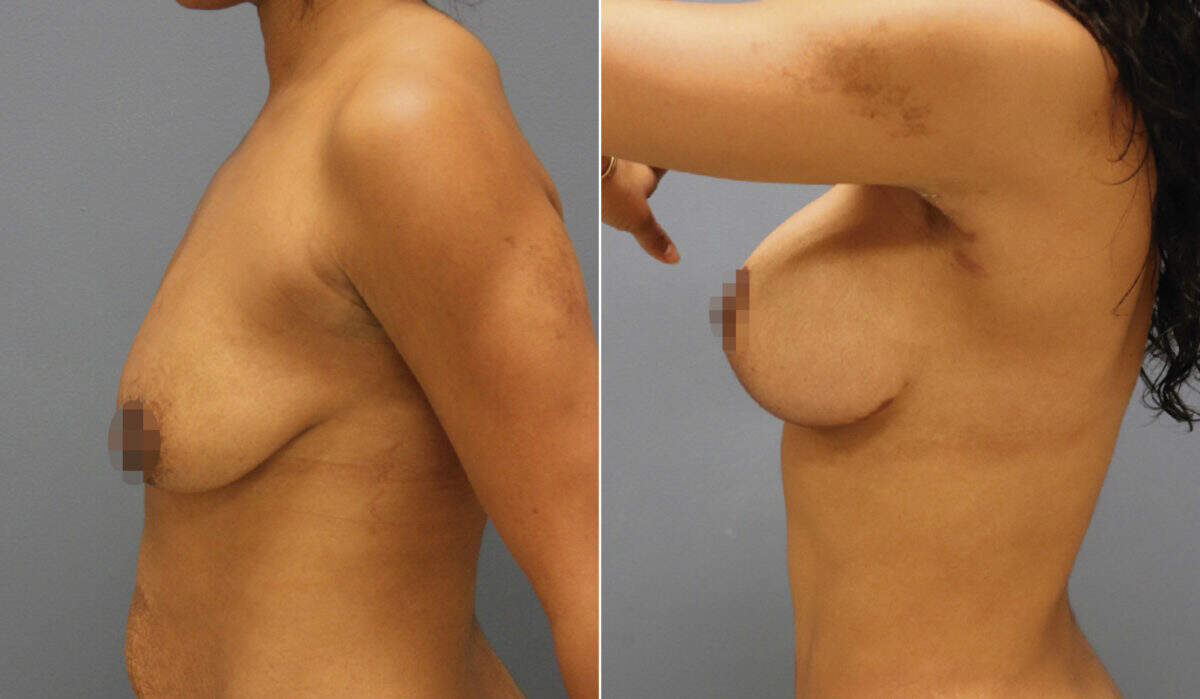 Breast Lift with Implants Before and After Photos in Lexington, KY, Patient 10272