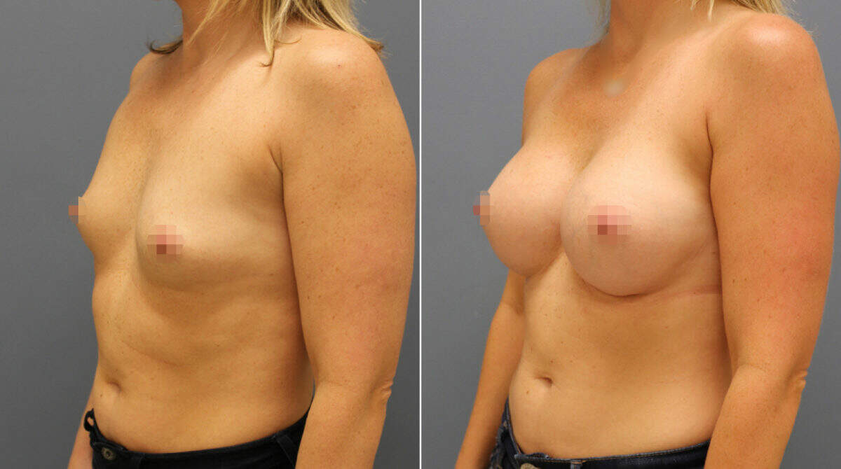 Breast Augmentation Before and After Photos in Lexington, KY, Patient 10381