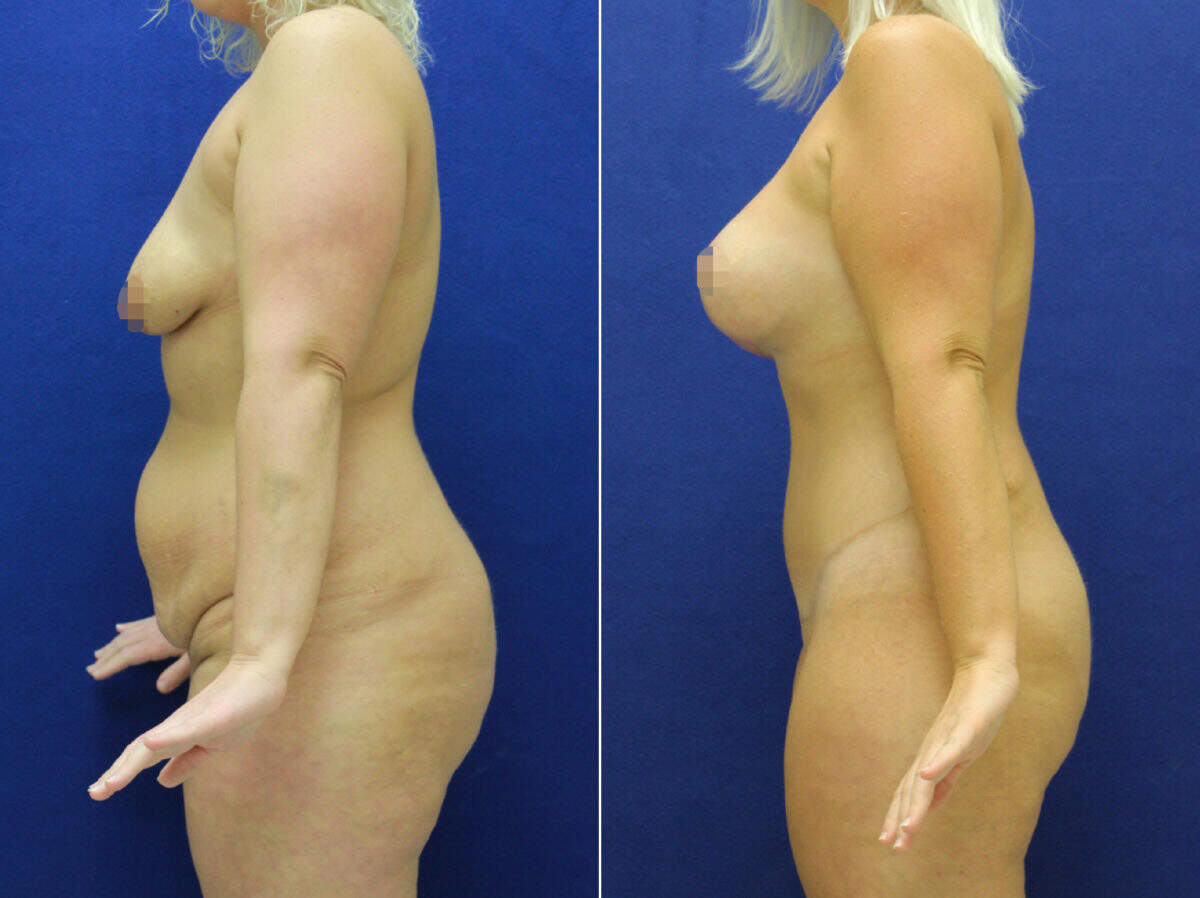 Body Lift Before and After Photos in Lexington, KY, Patient 10808
