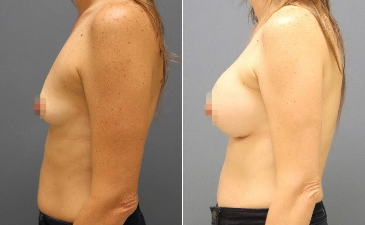 Breast Augmentation Before and After Photos in Lexington, KY, Patient 10950