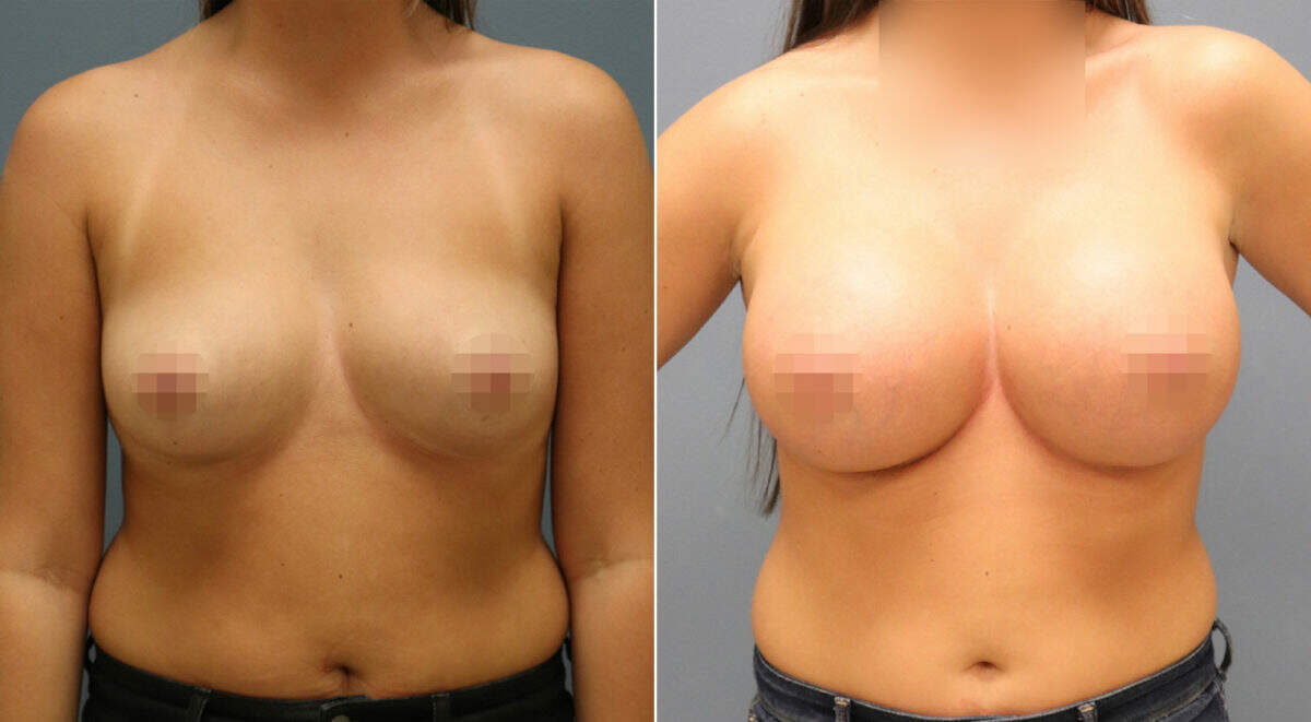 Breast Augmentation Before and After Photos in Lexington, KY, Patient 10971