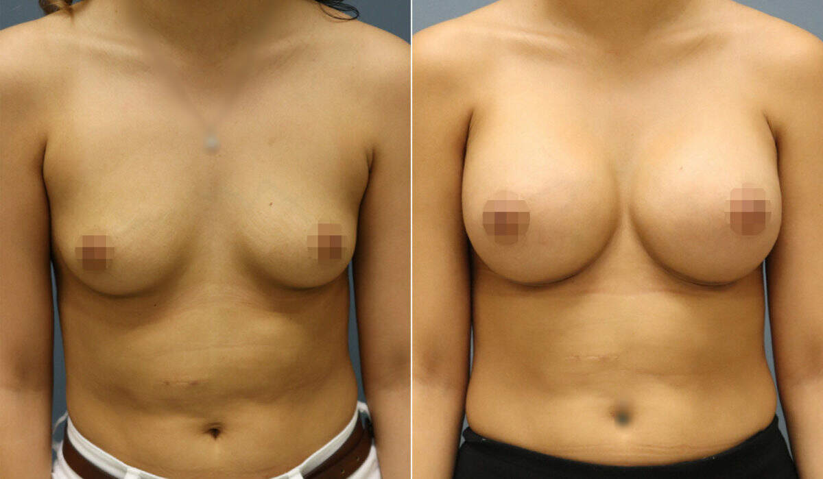 Breast Augmentation Before and After Photos in Lexington, KY, Patient 12434