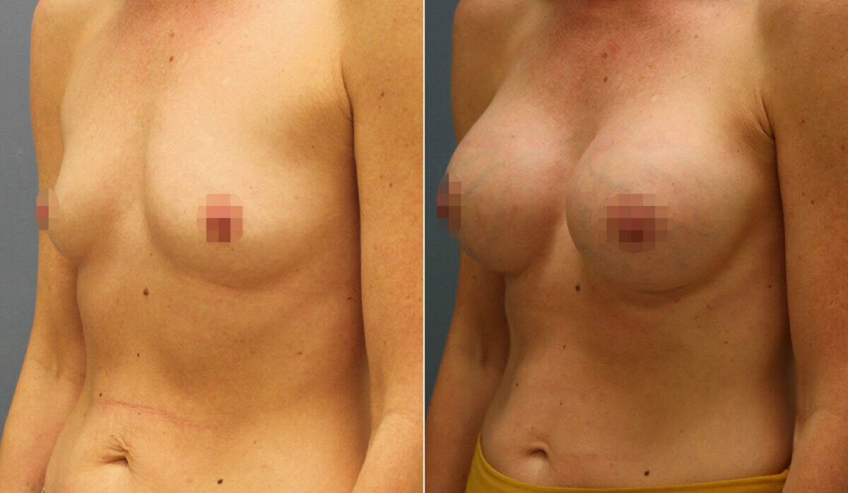Breast Augmentation Before and After Photos in Lexington, KY, Patient 12444