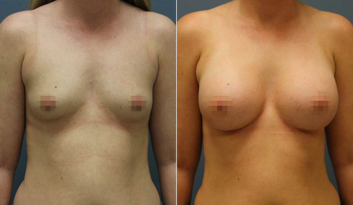 Breast Augmentation Before and After Photos in Lexington, KY, Patient 12454