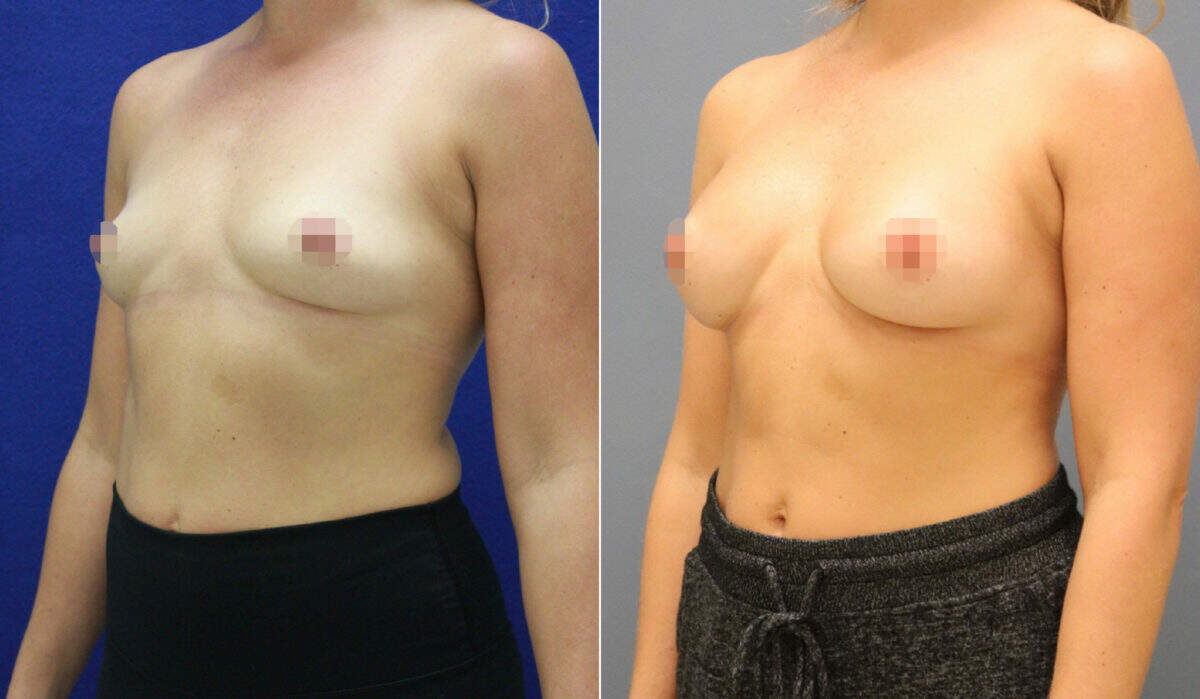 Breast Augmentation Before and After Photos in Lexington, KY, Patient 12505