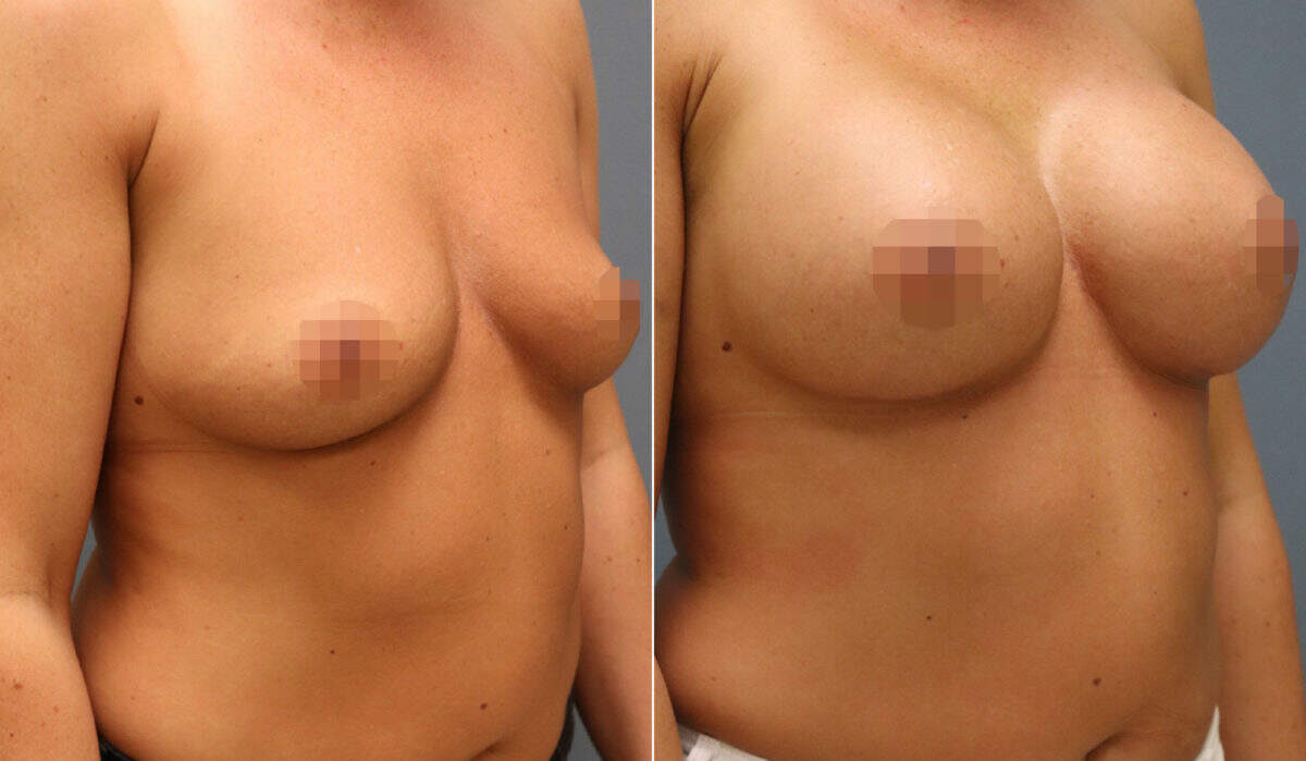 Breast Augmentation Before and After Photos in Lexington, KY, Patient 12529