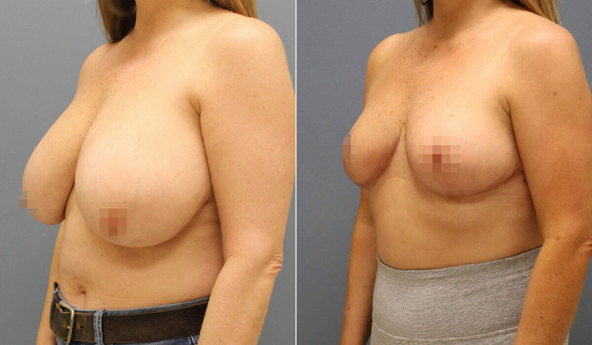 Breast Reduction Before and After Photos in Lexington, KY, Patient 12654
