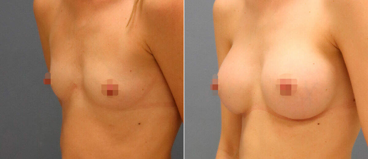 Breast Augmentation Before and After Photos in , , Patient 13075