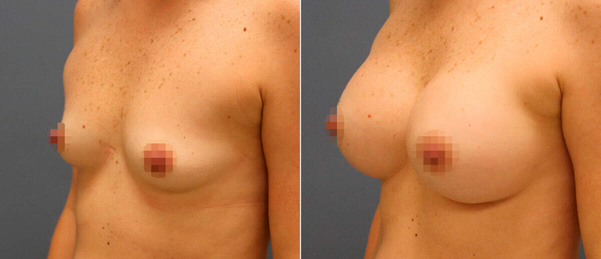 Breast Augmentation Before and After Photos in Lexington, KY, Patient 13096