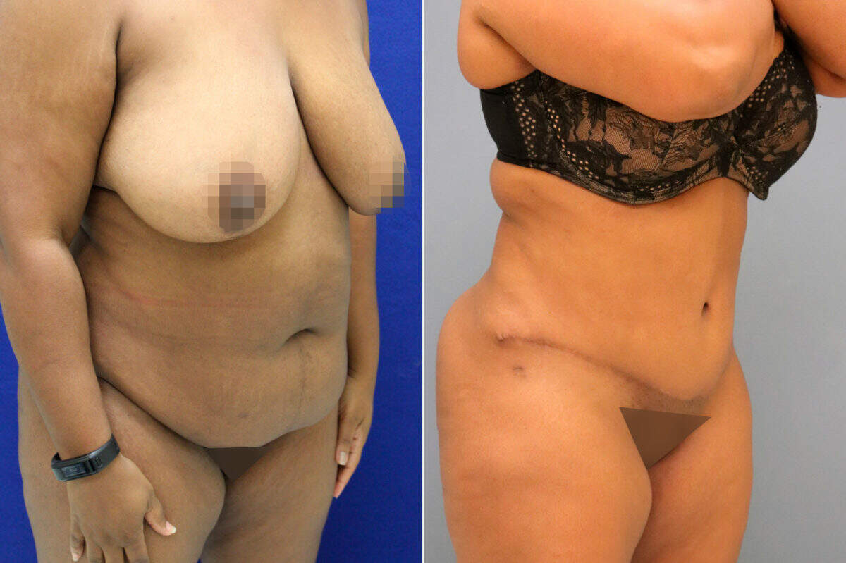 Tummy Tuck Before and After Photos in Lexington, KY, Patient 13106