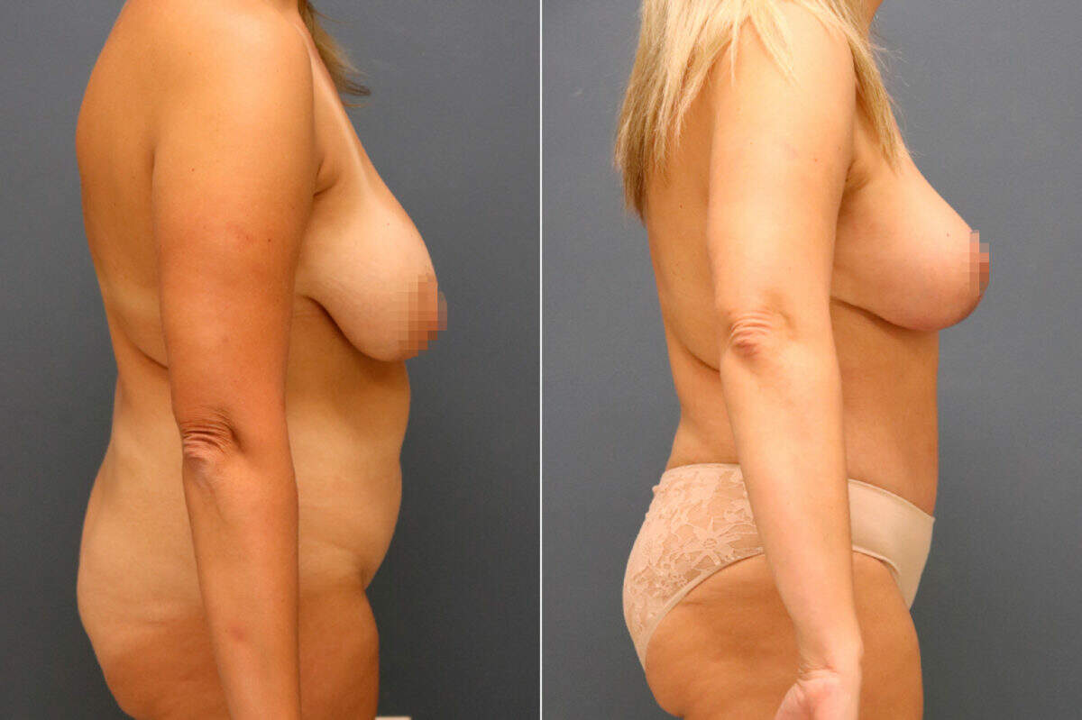 Tummy Tuck Before and After Photos in Lexington, KY, Patient 13153