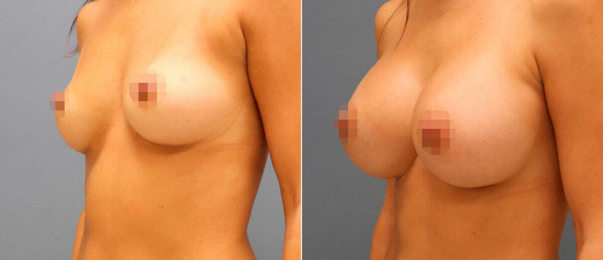 Breast Augmentation Before and After Photos in Lexington, KY, Patient 13181