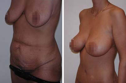 Body Lift Before and After Photos in Lexington, KY, Patient 7310