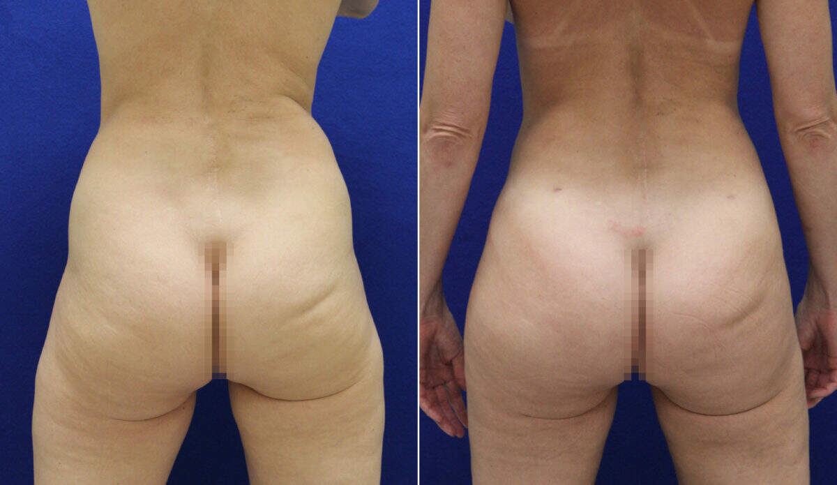 Brazilian Butt Lift Before and After Photos in Lexington, KY, Patient 7320