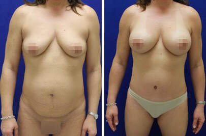 Tummy Tuck Before and After Photos in Lexington, KY, Patient 7360