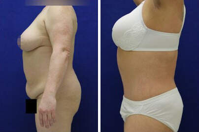 Tummy Tuck Before and After Photos in Lexington, KY, Patient 7370
