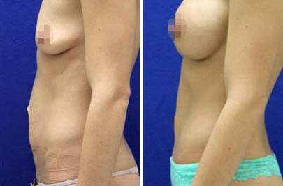 Tummy Tuck Before and After Photos in Lexington, KY, Patient 7494