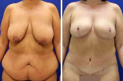 Tummy Tuck Before and After Photos in Lexington, KY, Patient 7504