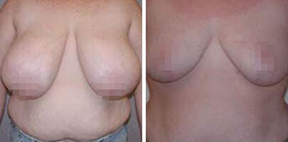 Breast Reduction Before and After Photos in Lexington, KY, Patient 7660