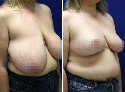 Breast Reduction Before and After Photos in Lexington, KY, Patient 7744