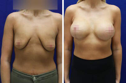 Breast Lift with Implants Before and After Photos in Lexington, KY, Patient 7774