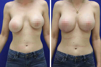 Breast Lift with Implants Before and After Photos in Lexington, KY, Patient 7794
