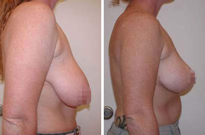 Breast Lift Before and After Photos in Lexington, KY, Patient 7866