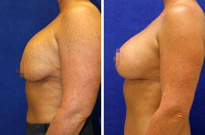 Breast Lift with Implants Before and After Photos in Lexington, KY, Patient 7886