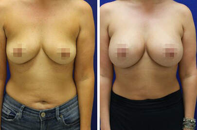 Breast Augmentation Before and After Photos in Lexington, KY, Patient 7896