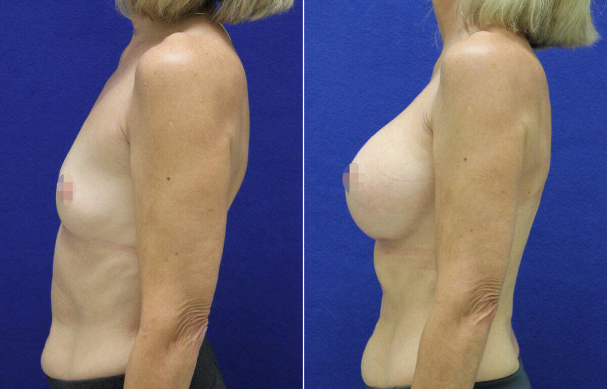 Breast Augmentation Before and After Photos in Lexington, KY, Patient 7926