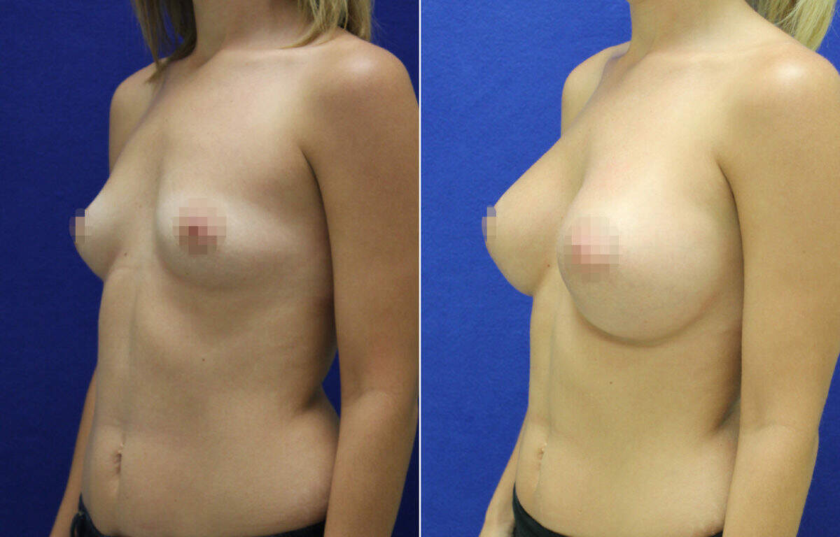 Breast Augmentation Before and After Photos in Lexington, KY, Patient 7936